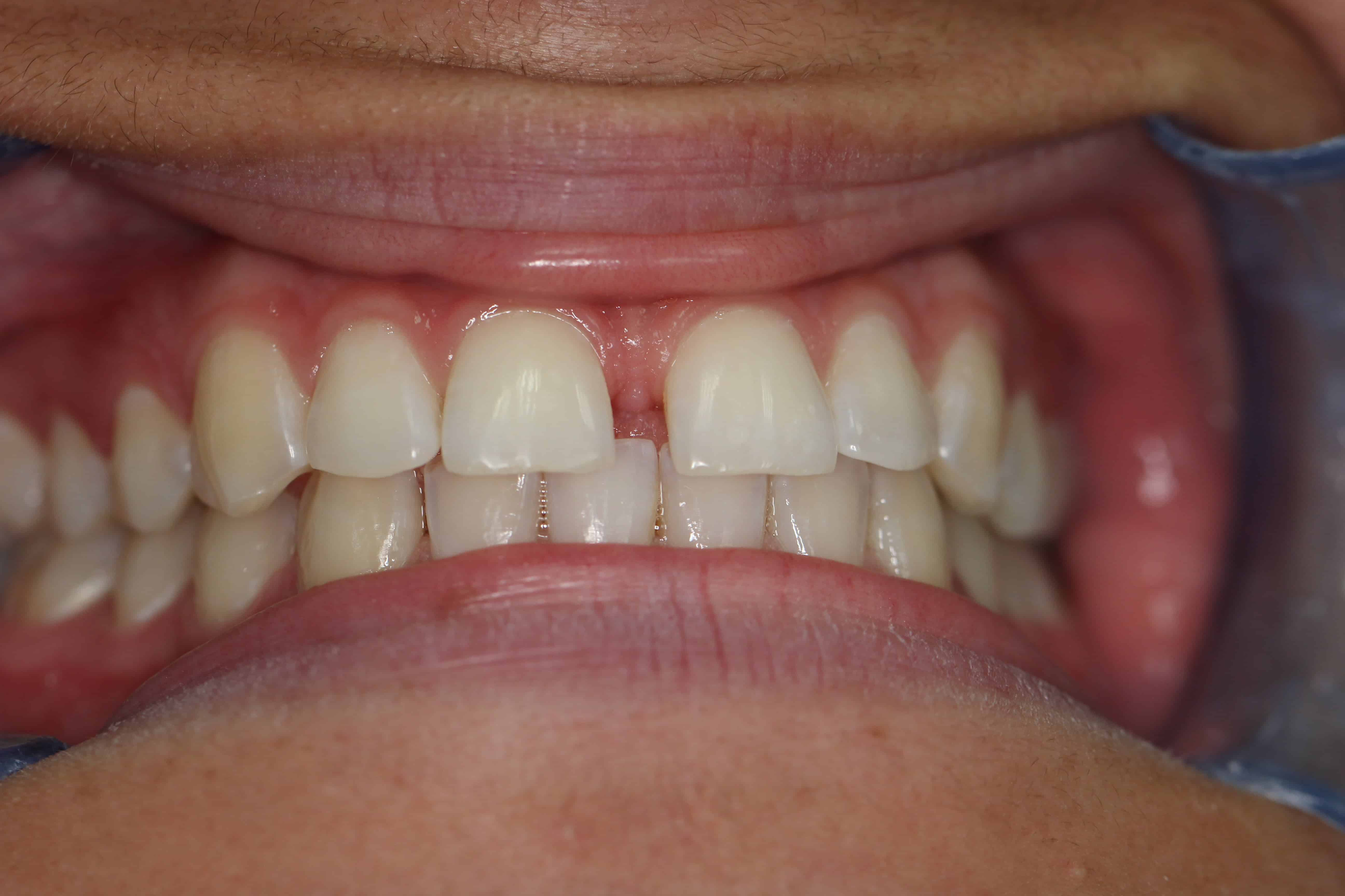 Diastema Gap Tooth Brisbane Orthodontics Before and After