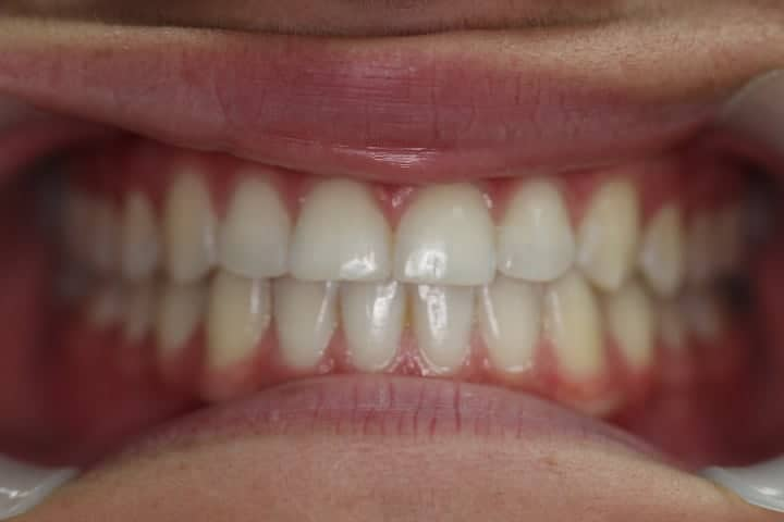 Braces Before and After Brisbane South