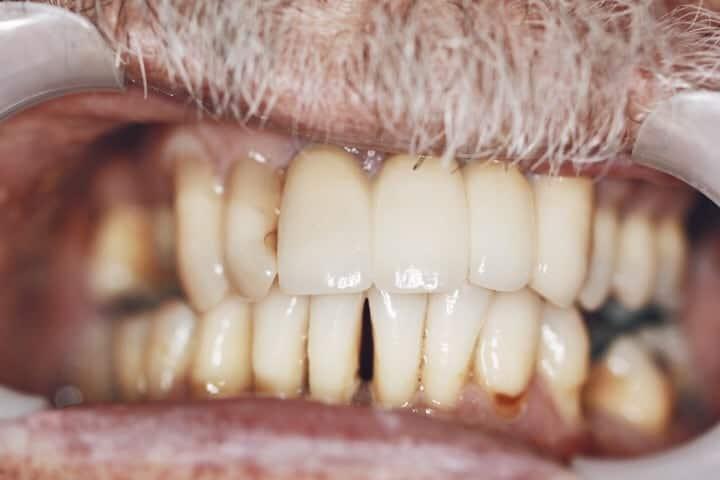 Dental Implant Brisbane Dentist