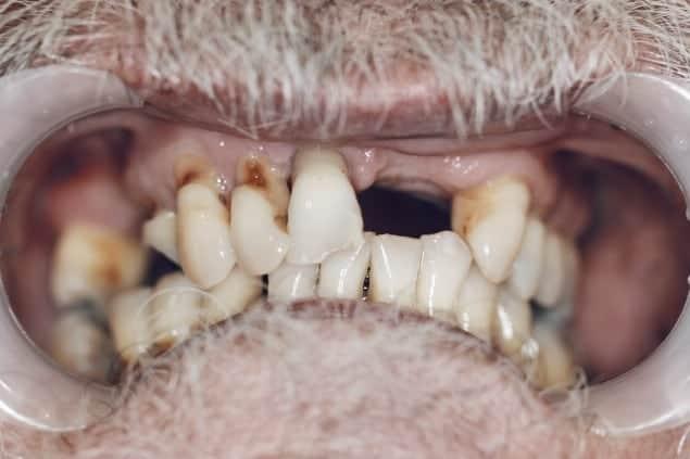 Smile Transformation Before and After Brisbane Dentist