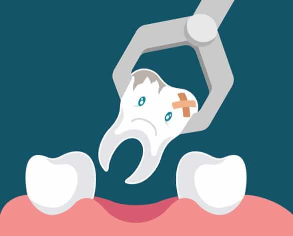 Tooth Extraction Care Brisbane Dentist