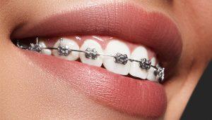 Metal Braces Brisbane Orthodontics