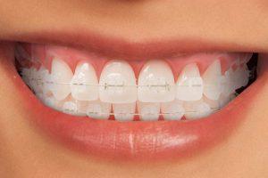 Ceramic Braces Brisbane Orthodontics