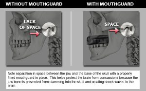Concussion Prevention Mouthguard Brisbane Dentist